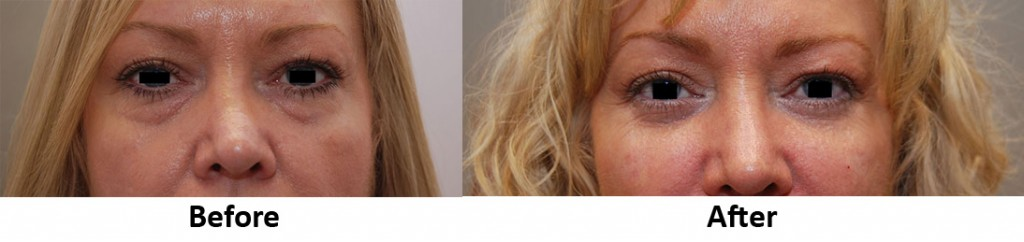 filler-under-eye-cheek-Before-After