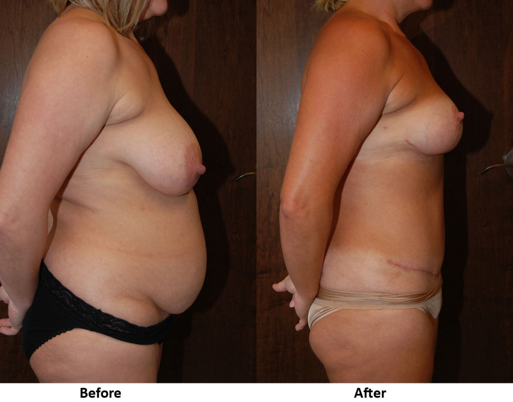 Mastopexy Before-After