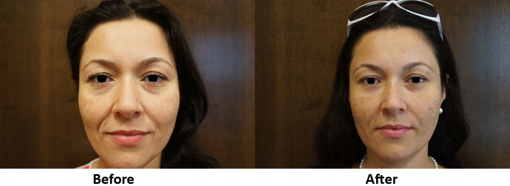 Under-Eye-and-Pre-Jowl-Before-After1
