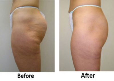 Velashape™: Cellulite Reduction