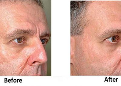 Profractional Laser Resurfacing