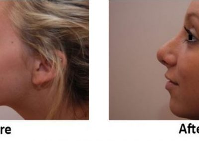 Chin & Cheek Contouring
